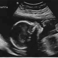 23 weeks ultrasound cropped.jpg