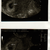 ultrasound.png