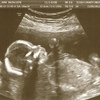 ALKMommy's photos in Ultrasound - Boy or Girl?