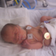 Nine Years After the NICU