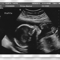 23 weeks ultrasound.jpg