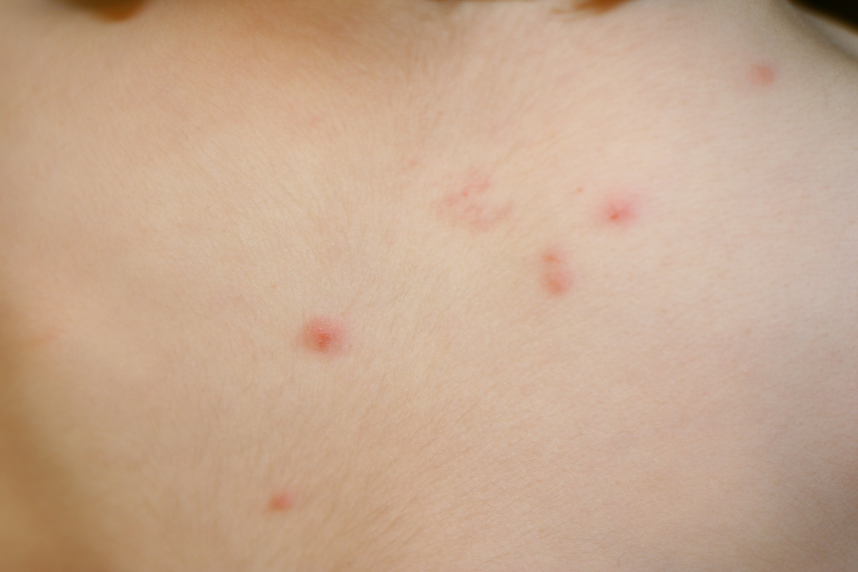 The gallery for --> Symptoms Of Chickenpox