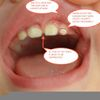 itsybistyspider's photos in 11 month old tooth problems help!